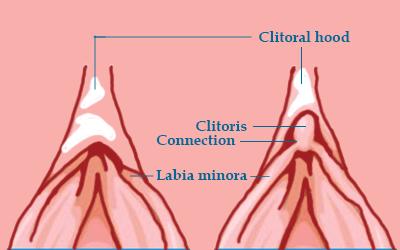 clit-strangulation